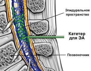 epiduralka chto eto - Эпидуральная анестезия при родах: последствия и преимущества