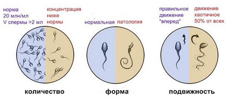 kak-zachat-pri-plohoy-spermogramme