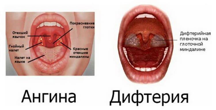 При боли в горле при глотании без температуры лечение в домашних условиях