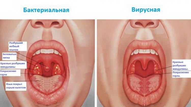 Лечение хронического тонзиллита, симптомы, фото горла