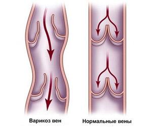 Варикоз при беременности на ногах что делать можно и чего нельзя
