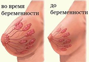 Когда начинает болеть грудь при беременности