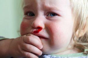 Гемофилия: причины, признаки, лечение, у детей
