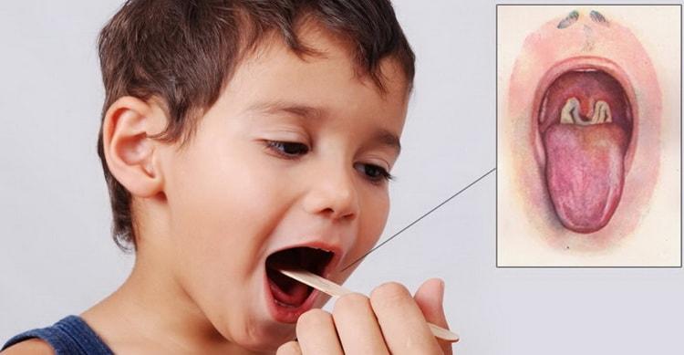 Дифтерия у детей симптомы и лечение, профилактика, фото