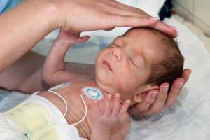 Перинатальное поражение ЦНС у новорожденных: органическое поражение центральной нервной системы, резидуальная, органическая форма