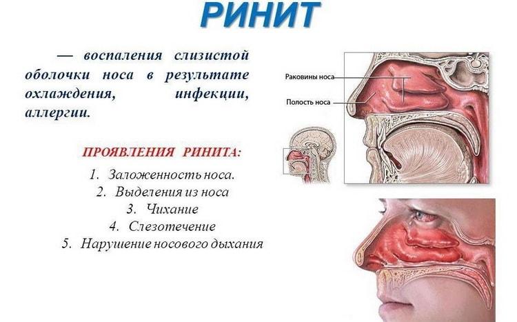 ринит симптомы у детей до года