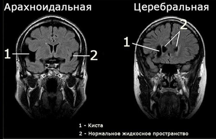 Кисты в головном мозге у новорожденных, что делать.