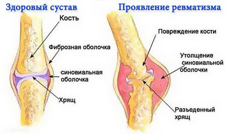 Причины повышенного содержания моноцитов в крови у ребенка